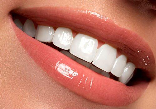 Estética Dental Carillas Composite Clínica Perán Córdoba