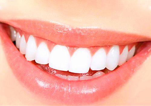 Estética Dental Carillas IPS emax Clínica Perán Córdoba