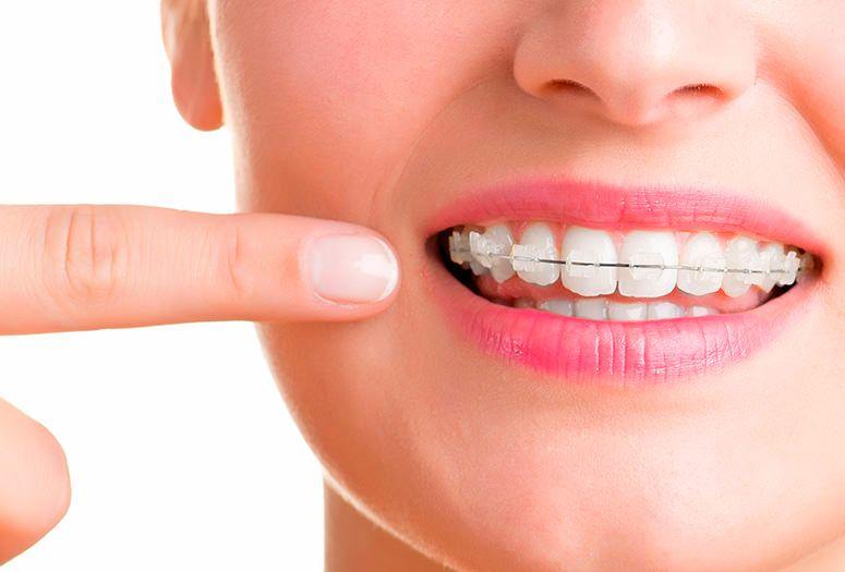 ortodoncia-damon-cordoba-clinica-peran