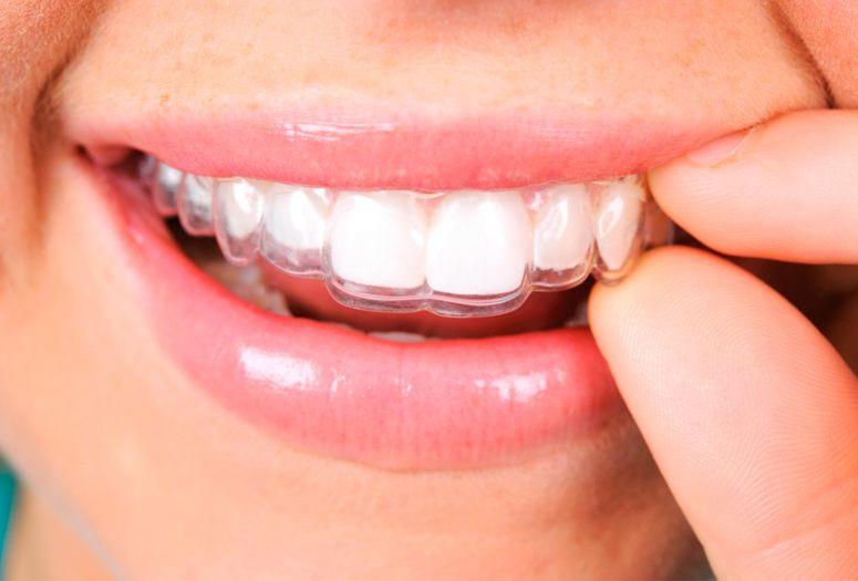 ortodoncia-invisible-invisalign-cordoba-clinica-peran