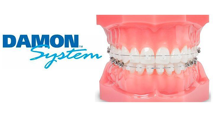 sistema-damon-ortodoncia-clinica-peran-cordoba