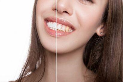 blanqueamiento-dental-cordoba-clinica-peran-antes-despues