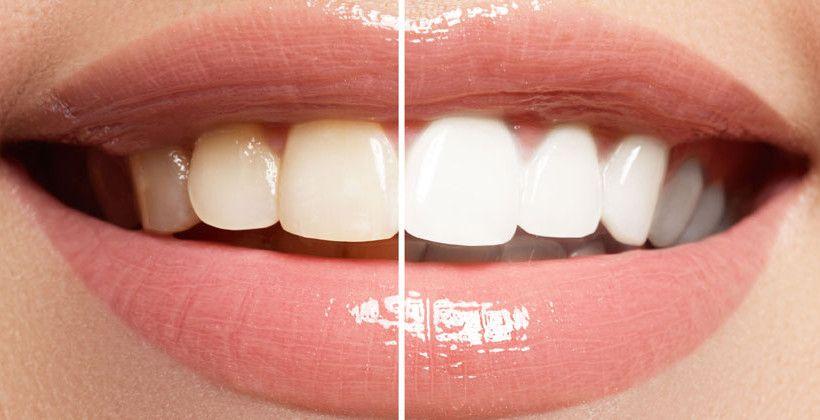blanqueamineto-dental-cordoba-clinica-dental-peran