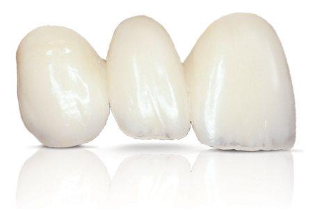 E-MAX Carillas Dentales Clínica Dental Perán - Córdoba